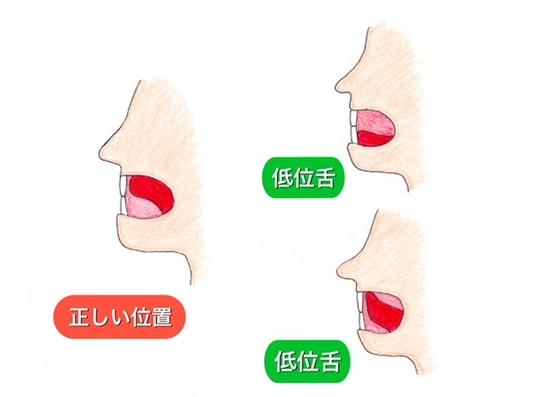 の 位置 舌 正しい 寝るとき口呼吸の私が5日間舌の位置を正確な場所にした結果